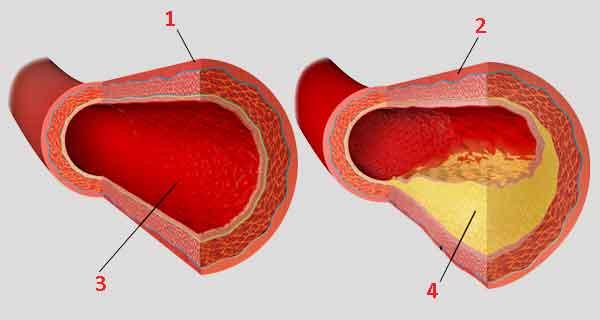 Кровеносные сосуды внутри