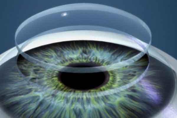 Технология печати глазной роговицы от Ньюкасла