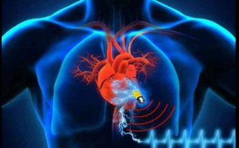 Технология питания имплантатов беспроводной связью