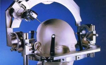 Разработана инновационная система операций на мозге