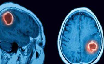 Система искусственного интеллекта для клинической практики