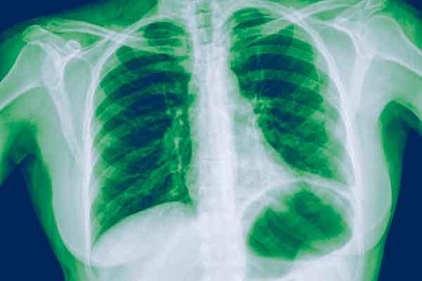 Пневмония на рентгеновских снимках диагностируется за десять секунд